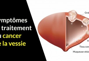Traitement  cancer de la vessie